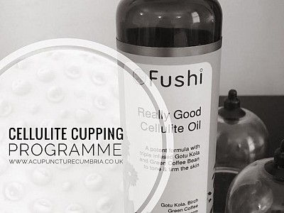 Can Cupping Reduce Cellulite?